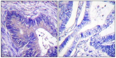 Immunohistochemistry (Paraffin-embedded sections) - ATP citrate lyase (phospho S455) antibody (ab59297)