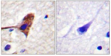 Immunohistochemistry (Paraffin-embedded sections) - mTOR antibody (ab59299)