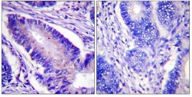 Immunohistochemistry (Paraffin-embedded sections) - eIF4B (phospho S422) antibody (ab59300)