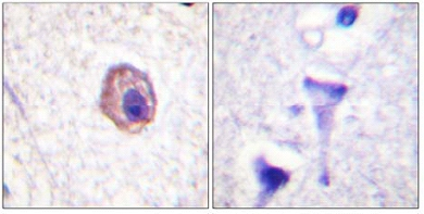 Immunohistochemistry (Paraffin-embedded sections) - Myosin Light Chain 2 antibody (ab59301)