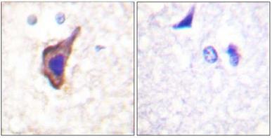 Immunohistochemistry (Paraffin-embedded sections) - NMDAR1 antibody (ab59302)
