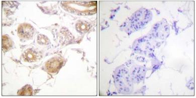 Immunohistochemistry (Paraffin-embedded sections) - BMX (phospho Y40) antibody (ab59304)