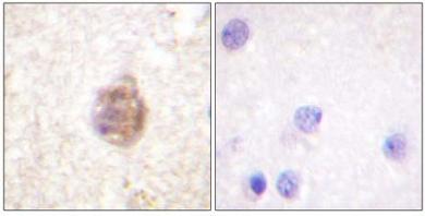 Immunohistochemistry (Paraffin-embedded sections) - IRS1 (phospho S794) antibody (ab59305)