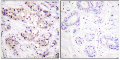 Immunohistochemistry (Paraffin-embedded sections) - PKC alpha + beta 2 antibody (ab59328)
