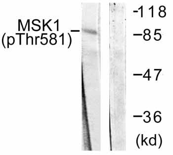 Western blot - MSK1 (phospho T581) antibody (ab59336)