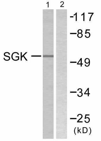 Western blot - SGK1 antibody (ab59337)