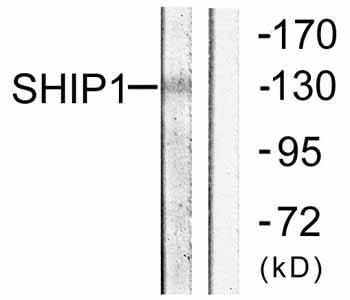 Western blot - SHIP antibody (ab59338)