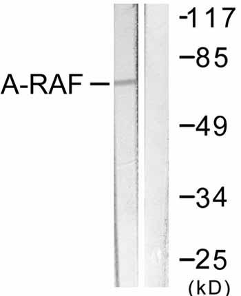 Western blot - A RAF antibody (ab59343)
