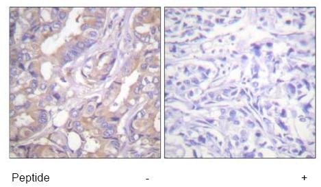 Immunohistochemistry (Paraffin-embedded sections) - A RAF antibody (ab59343)
