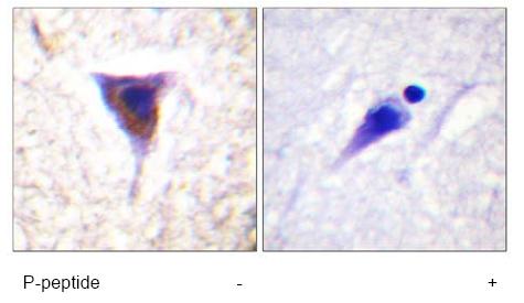 Immunohistochemistry (Paraffin-embedded sections) - mTOR antibody (ab59350)