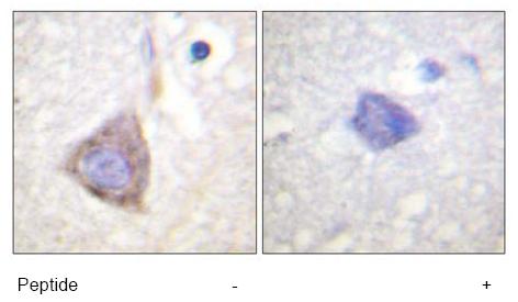 Immunohistochemistry (Paraffin-embedded sections) - Bcr antibody (ab59352)