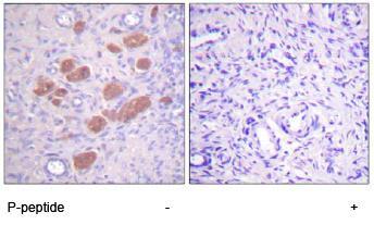 Immunohistochemistry (Paraffin-embedded sections) - NCF4 (phospho T154) antibody (ab59355)