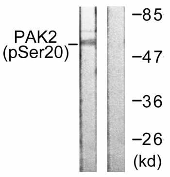 Western blot - PAK2 (phospho S20) antibody (ab59359)