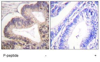 Immunohistochemistry (Paraffin-embedded sections) - PAK2 (phospho S20) antibody (ab59359)