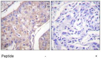 Immunohistochemistry (Paraffin-embedded sections) - GAB1 antibody (ab59362)