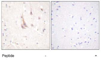 Immunohistochemistry (Formalin/PFA-fixed paraffin-embedded sections) - PKC zeta antibody (ab59364)