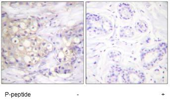 Immunohistochemistry (Paraffin-embedded sections) - PKC alpha + beta 2 (phospho T638) antibody (ab59365)