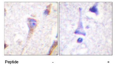 Immunohistochemistry (Paraffin-embedded sections) - PKC mu antibody (ab59367)