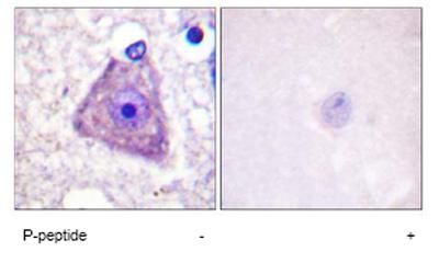Immunohistochemistry (Paraffin-embedded sections) - RASGRF1 (phospho S929) antibody (ab59368)