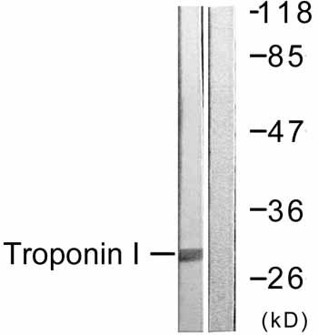 Western blot - cardiac Troponin I antibody (ab59376)