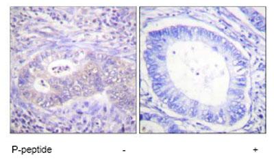 Immunohistochemistry (Paraffin-embedded sections) - Fructose 6 Phosphate Kinase (phospho S483) antibody (ab59378)