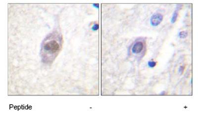Immunohistochemistry (Paraffin-embedded sections) - APC antibody (ab59383)