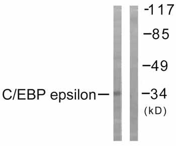 Immunohistochemistry (Paraffin-embedded sections) - CEBPE antibody (ab59384)