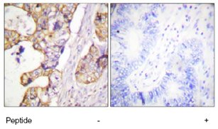 Immunohistochemistry (Formalin/PFA-fixed paraffin-embedded sections) - Cytokeratin 8 antibody (ab59400)