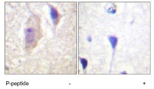 Immunohistochemistry (Paraffin-embedded sections) - Bcr (phospho Y360) antibody (ab59404)