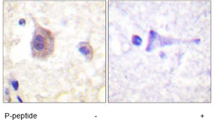 Immunohistochemistry (Formalin/PFA-fixed paraffin-embedded sections) - PKC mu (phospho Y463) antibody (ab59415)