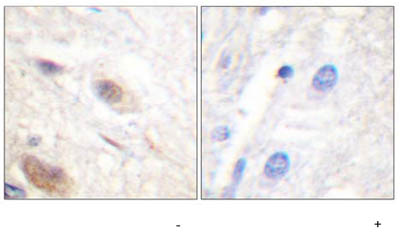 Immunohistochemistry (Formalin/PFA-fixed paraffin-embedded sections) - APC (phospho S2054) antibody (ab59421)