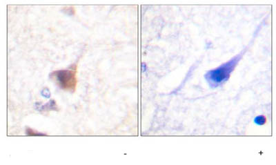 Immunohistochemistry (Formalin/PFA-fixed paraffin-embedded sections) - CAMKIV (phospho T196 + T200) antibody (ab59424)