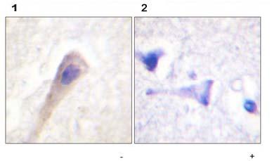 Immunohistochemistry (Paraffin-embedded sections) - Catalase (phospho Y385) antibody (ab59429)