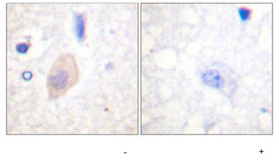 Immunohistochemistry (Formalin/PFA-fixed paraffin-embedded sections) - Cdc25B (phospho S353) antibody (ab59431)