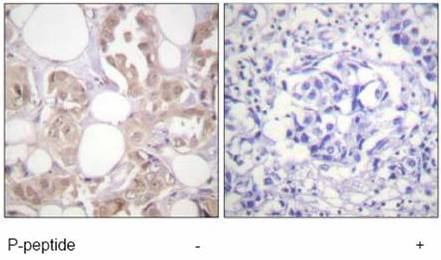 Immunohistochemistry (Formalin/PFA-fixed paraffin-embedded sections) - Cdk7 (phospho T170) antibody (ab59432)