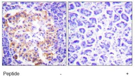 Immunohistochemistry (Paraffin-embedded sections) - Collagen III antibody (ab59436)