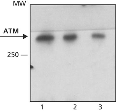 Western blot - ATM (phospho S15) antibody [MAT3-4G10/8] (ab59541)