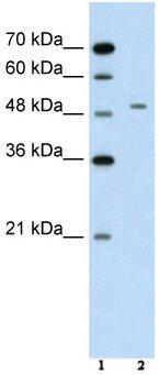 Western blot - Alanine Transaminase antibody (ab59667)