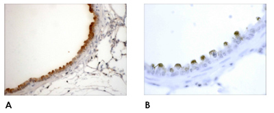 Immunohistochemistry (Formalin/PFA-fixed paraffin-embedded sections) - Anti-Clathrin antibody (ab59710)