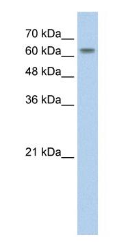Western blot - SLC38A1 antibody (ab59721)
