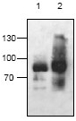 Western blot - AAK1 antibody (ab59740)