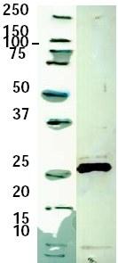 Western blot - Silicatein alpha antibody (ab59748)