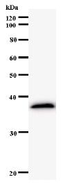 Western blot - E2F5 antibody [220D1a] (ab59769)