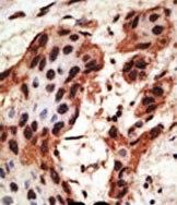 Immunohistochemistry (Formalin/PFA-fixed paraffin-embedded sections) - GJB6 antibody (ab59927)