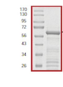 SDS-PAGE - IKB alpha protein (Tagged) (ab59981)
