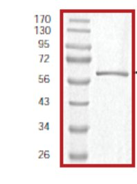 SDS-PAGE - Rb protein (Tagged) (ab59982)