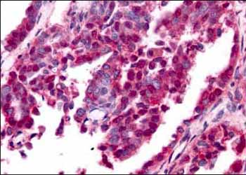 Immunohistochemistry (Formalin/PFA-fixed paraffin-embedded sections) - Egr1 antibody (ab6054)