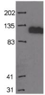 Western blot - MCM2 antibody [CRCT2.1 (D1.9H5) ] (ab6153)