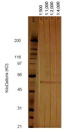 Western blot - Cytomegalovirus Glycoprotein B antibody [2F12] (ab6499)