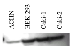 Western blot - Anti-Carbonic Anhydrase I antibody (ab6618)